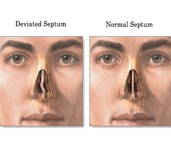 http://entcenterutah.com/wp-content/uploads/deviated-septum-before-after.jpg